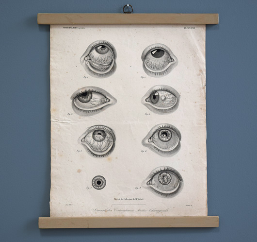 Mounted 19th-century antique medical engraving: Ophthalmia