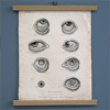 Mounted 19th-century medical engraving: Ophthalmia